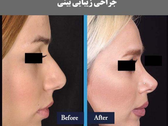 سئو سایت جراحی بینی و عمل بینی